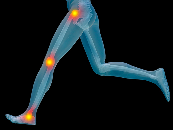 HyProCure - FDA orthopedic medical device realigns stabilizes hind-foot ankle foot normal joint range motion