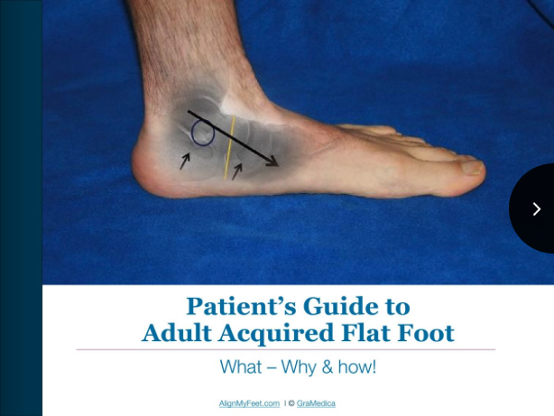 Pt Guide Adult Flat Feet