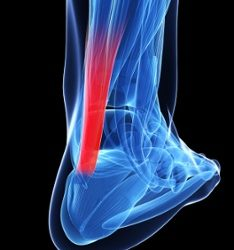 Why Your Achilles Tendonitis Didn't Cause Your Flat Feet