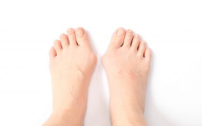 Is My Big Toe Pain Caused By a Bunion?