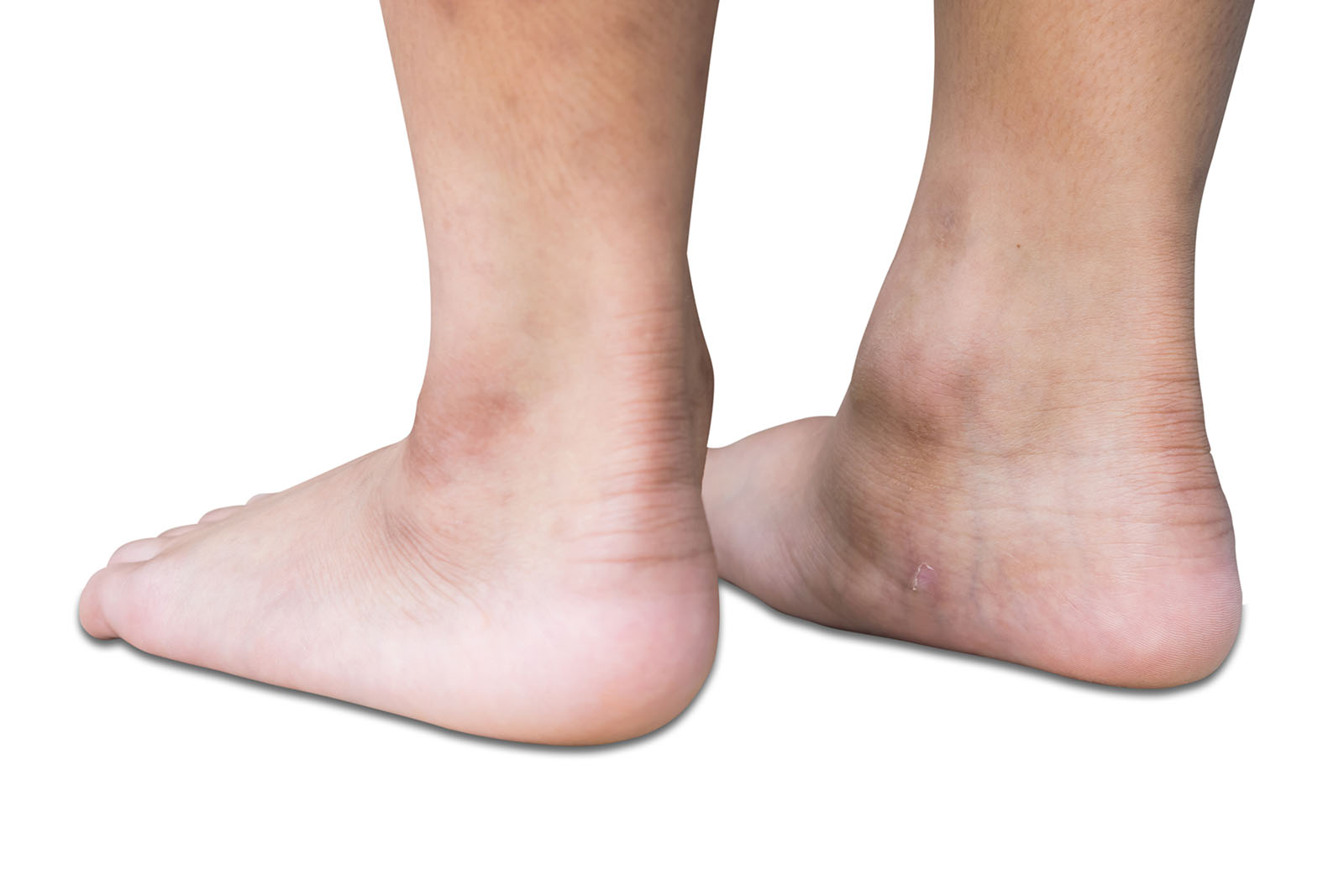 flat feet common problem for many people get rid of your flat feet
