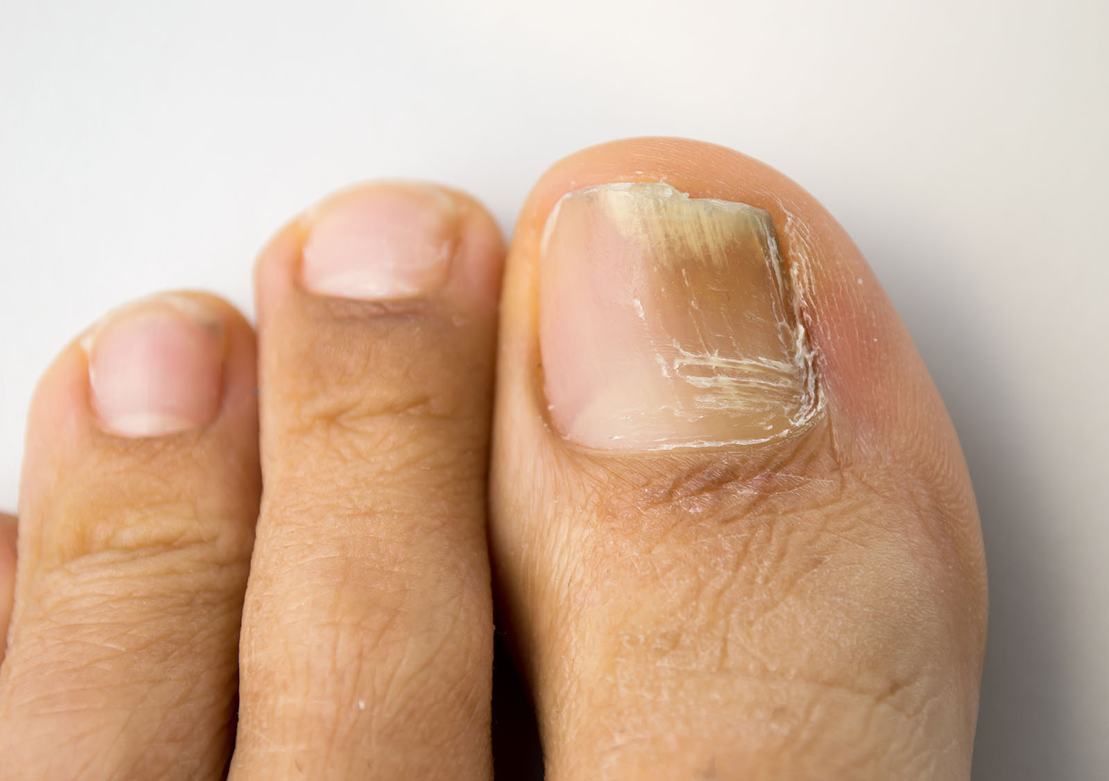 Can Discolored Toenails Be A Sign Of Serious Conditions
