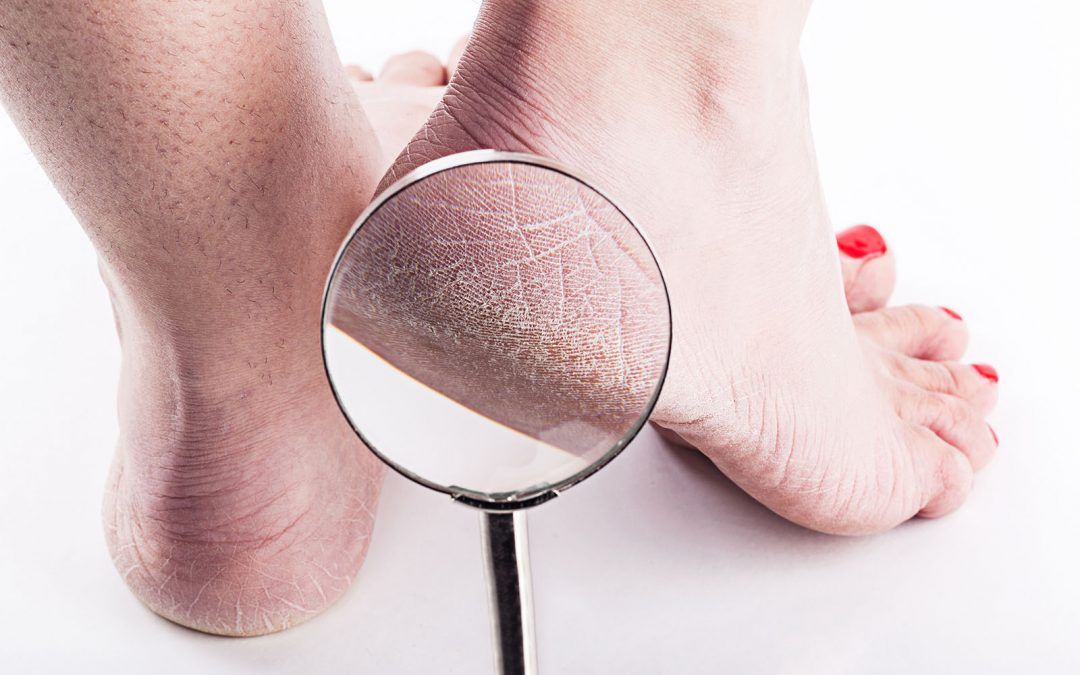 A Podiatrist's Recommendations: How to Get Rid of Dry Cracked Feet