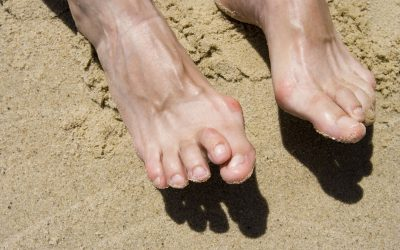 What People with Hammertoes Need to Know about Toe Implants