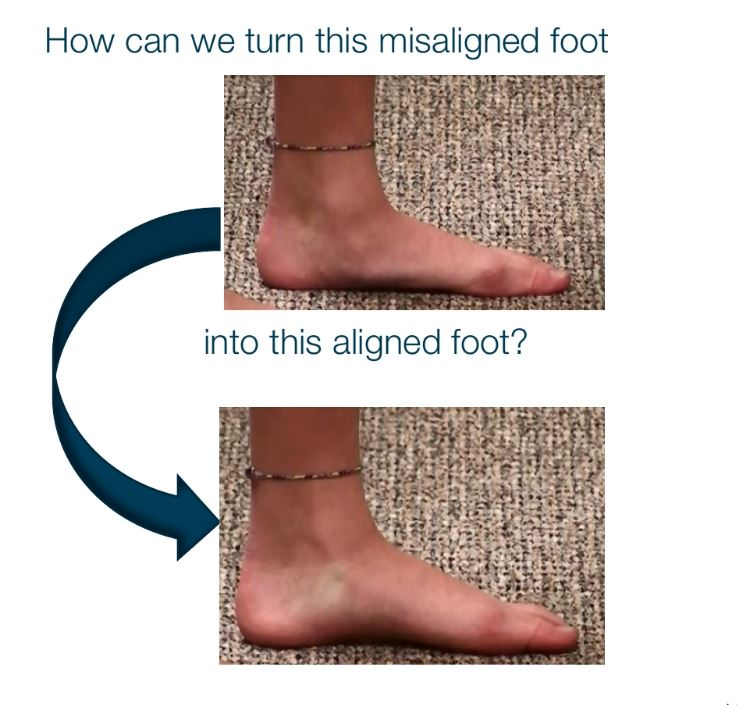 Realignment & Stabilization of the Ankle Bone