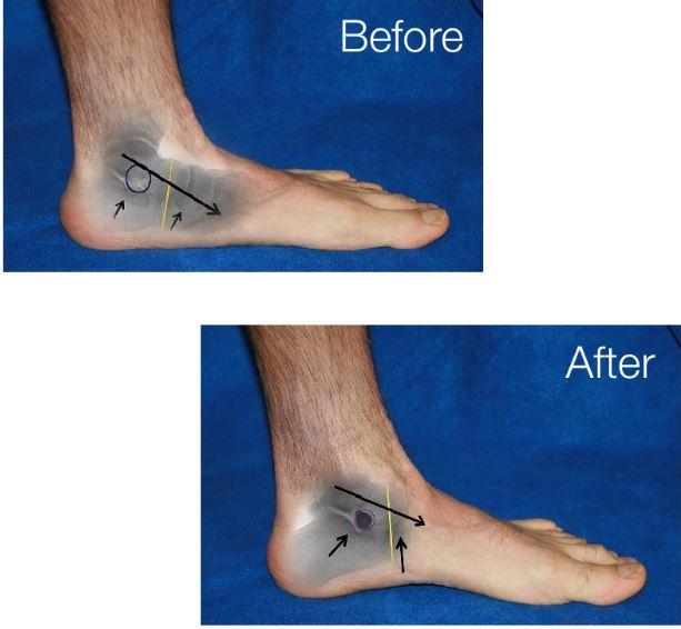 extra-osseous talotarsal stabilization (EOTTS)