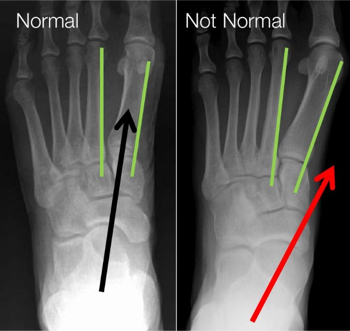 top to bottom view x-rays of an aligned and misaligned ankle bone