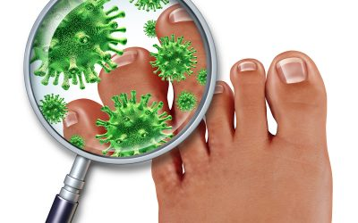 The Startling Causes of Your Athlete's Foot Problem