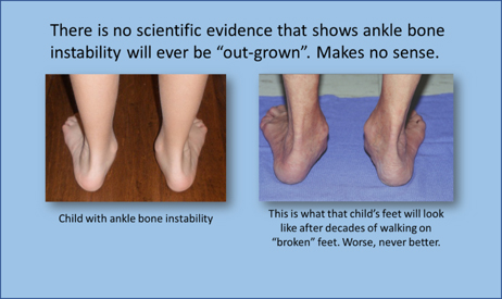 "there is no scientific evidence that shows ankle bone instability will ever be ""out-grown"""