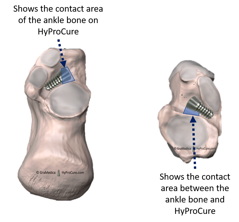 Small contact area between the ankle bone and HyProCure