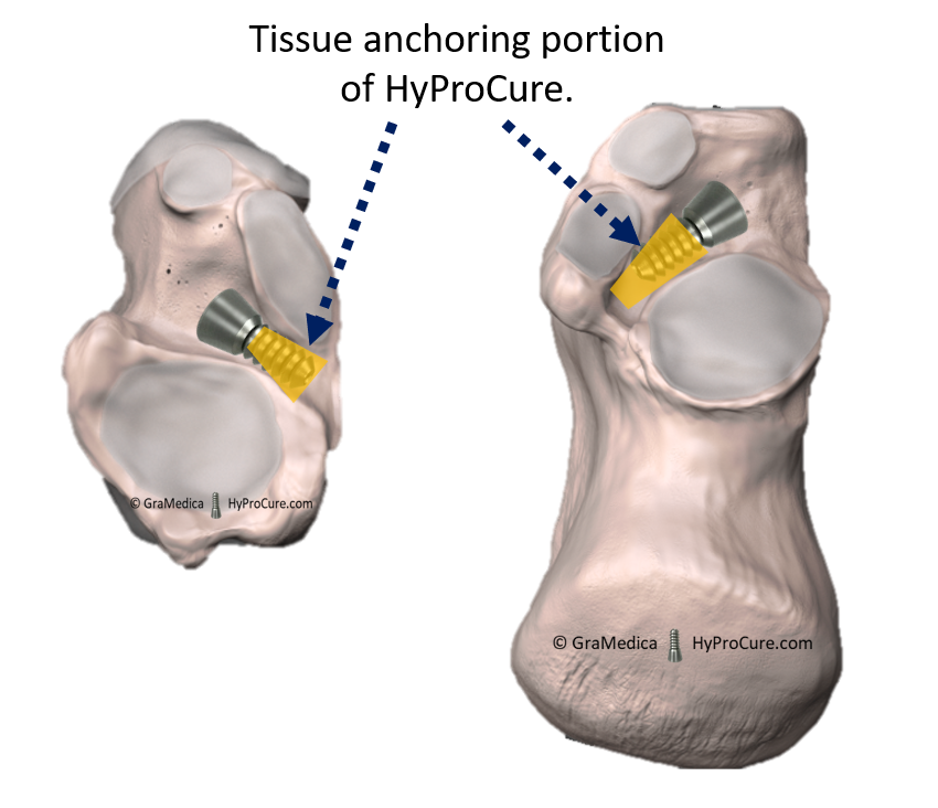 HyProCure anchored into the most stable soft tissues deep within the sinus tarsi space