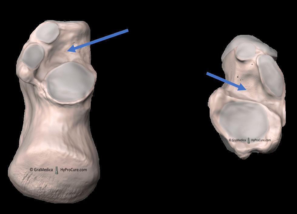 heel bone with visible sinus tarsi