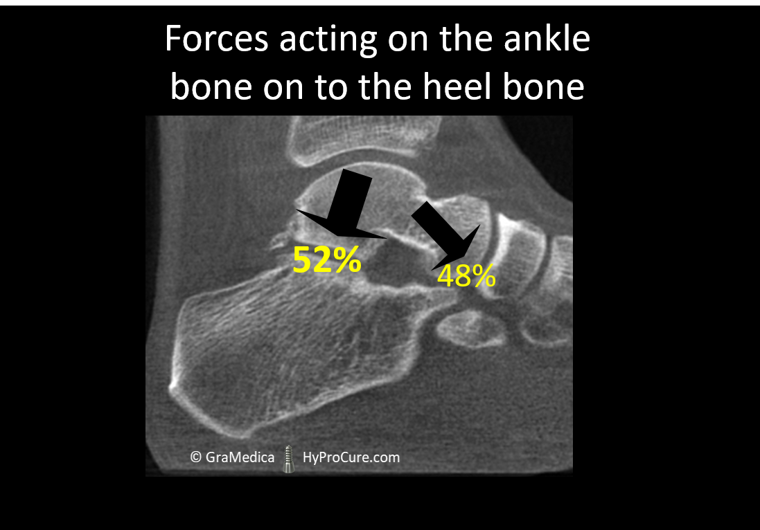 Forces acting on the ankle bone on to the heel bone