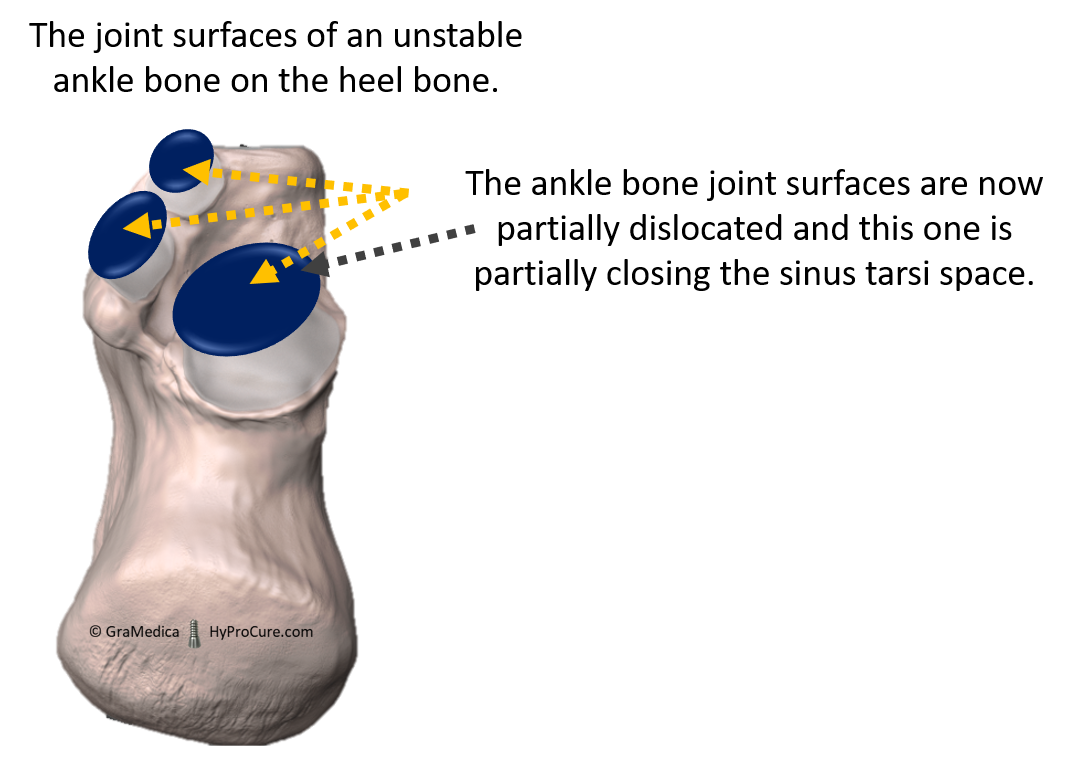 The joint surfaces of an unstable ankle bone on the heel bone