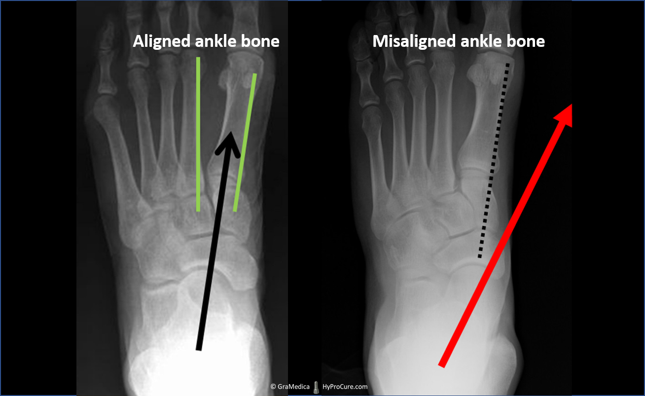 Top-bottom view relaxed standing x-ray - aligned ankle bone compared with misaligned ankle bone