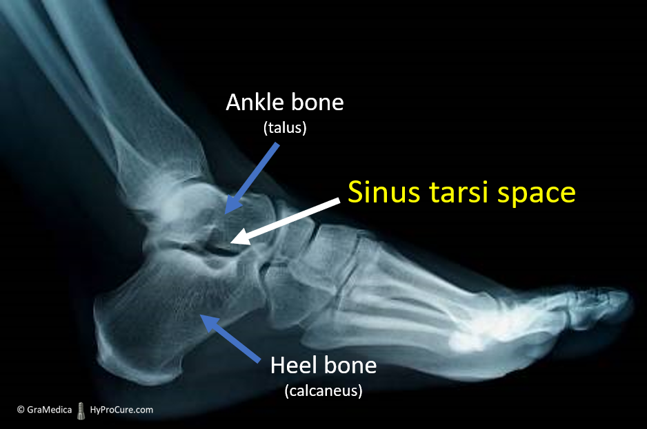 Side foot standing x-ray - ankle bone and heel bones and the sinus tarsi space open