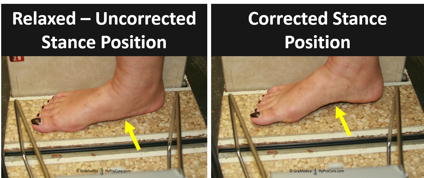 Relaxed foot Uncorrected Stance Postion compared with Corrected Stance Position