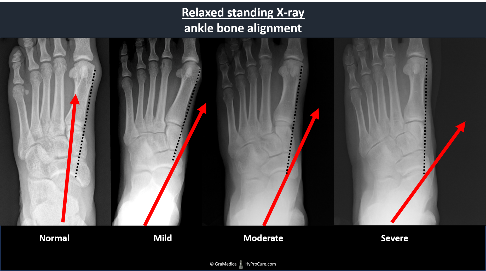 Top-bottom view relaxed standing x-ray - normal, mild, moderate, severe ankle bone alignment