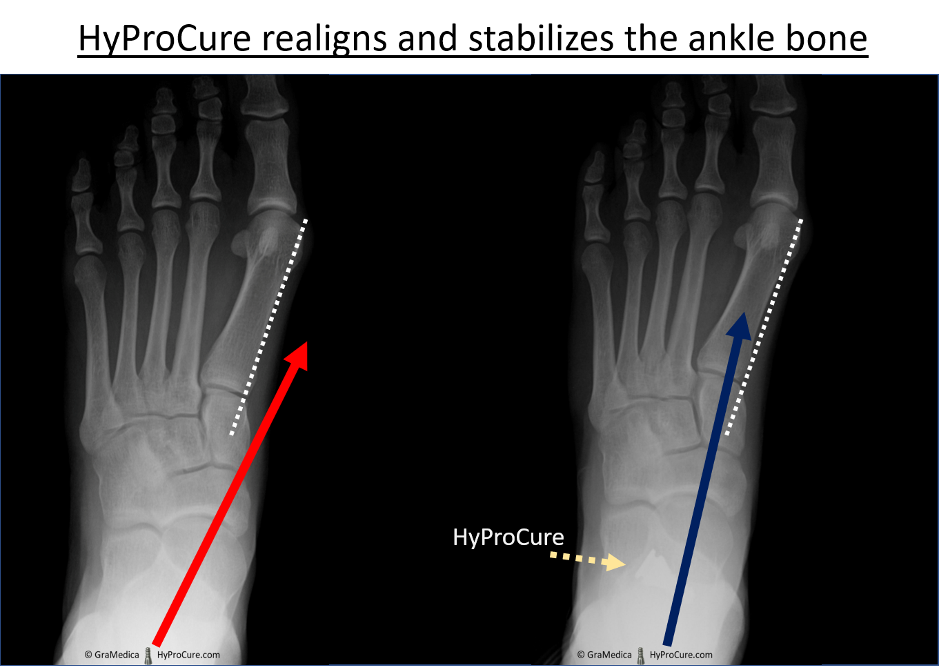 Top-bottom view x-ray - red arrow on the left, showing the bisection of the ankle bone to the inside of the white dotted line. On the right the placement of HyProCure into the sinus tarsi space and the normalization of the bisection of the ankle bone.