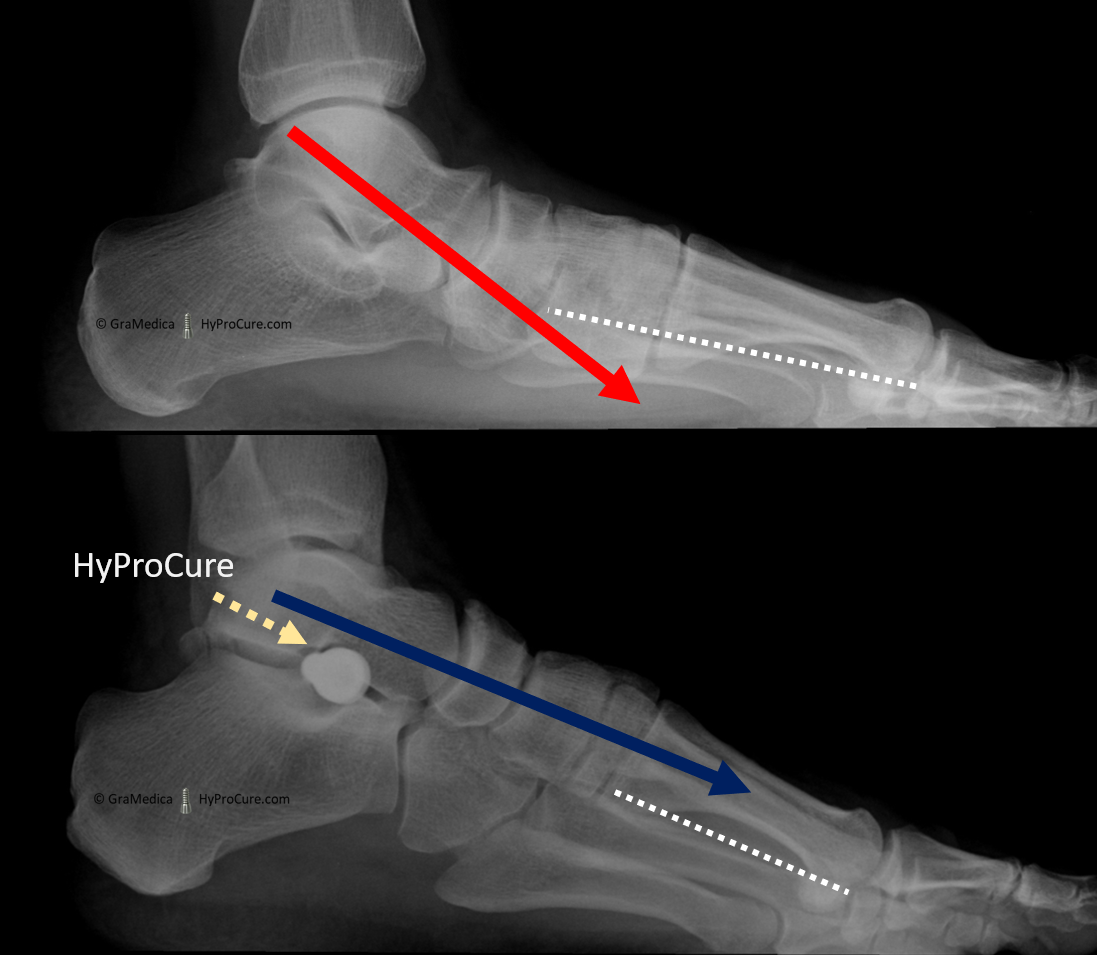 Side view x-ray - before / after HyProCure alignment of the ankle bone in the sagittal plane