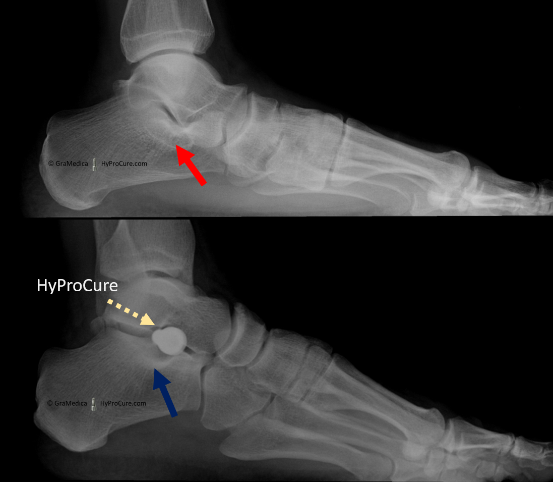 Side view x-ray - frontal plane correction, this is where the heel bone was turning outward. Once HyProCure is placed into the sinus tarsi space the shelf of bone is repositioned to its normal alignment