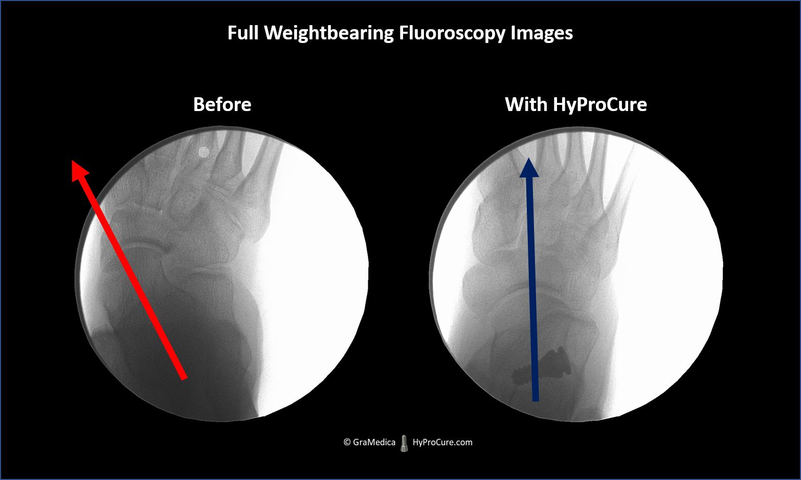 fluoroscopic x-ray image of an adult standing on their feet. The ankle bone is really turned, partially dislocated, inward. It is realigned after HyProCure is placed into the sinus tarsi space.
