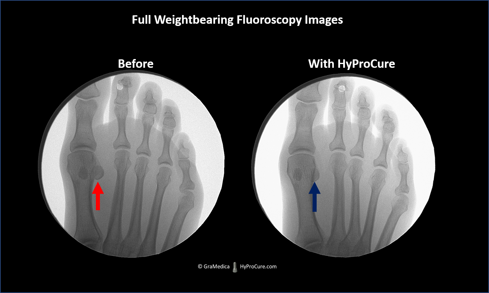 fluoroscopic x-ray forefoot images of the same person before and after HyProCure
