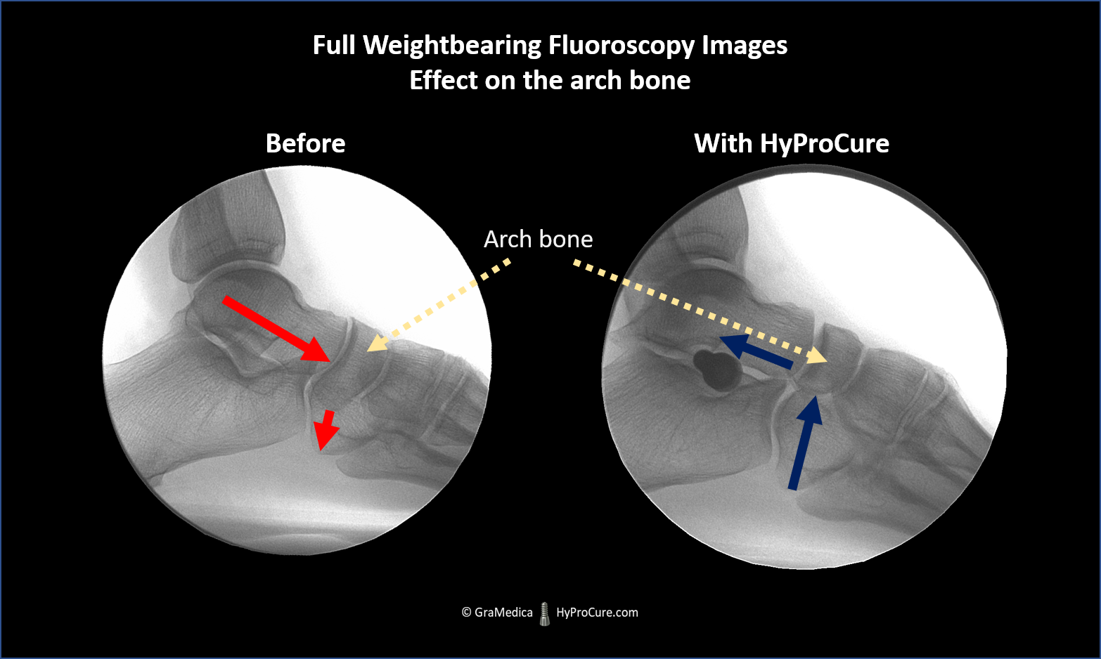 fluoroscopic x-ray the ankle bone forces the arch bone down. The arch bone is restored to its normal alignment once the ankle bone is realigned and stabilized with HyProCure.