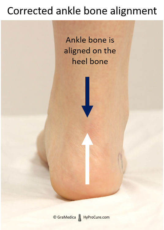 Ankle bone is aligned on the heel bone
