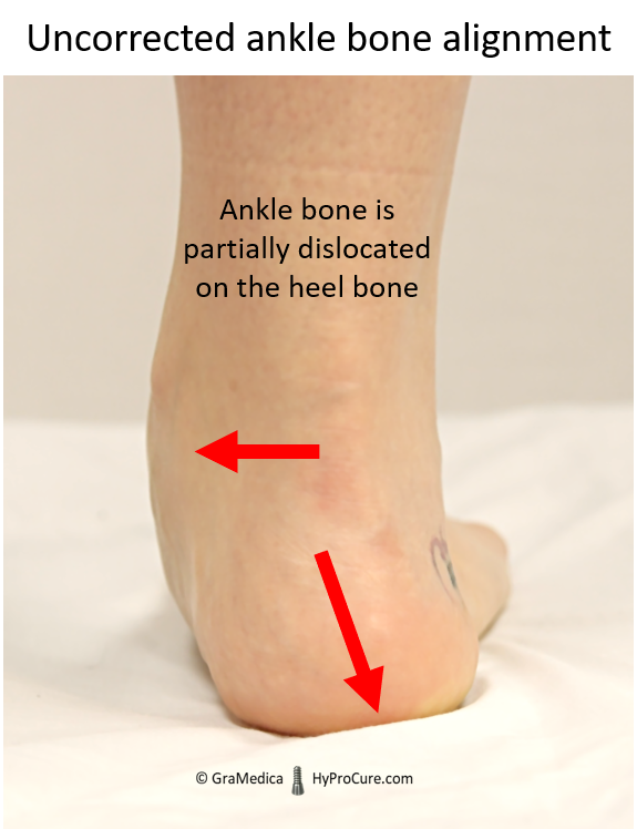 Ankle bone is partially dislocated on the heel bone