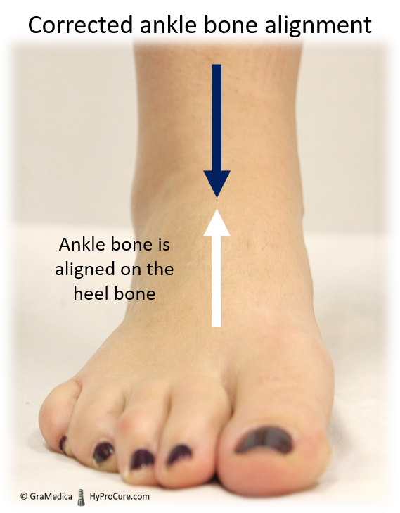 Corrected ankle bone alignment front view