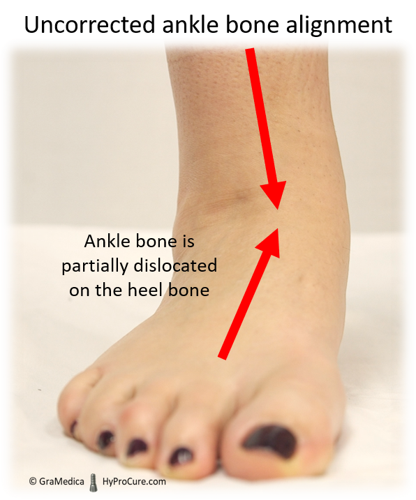 Full weight placed on the foot (uncorrected ankle bone alignment)