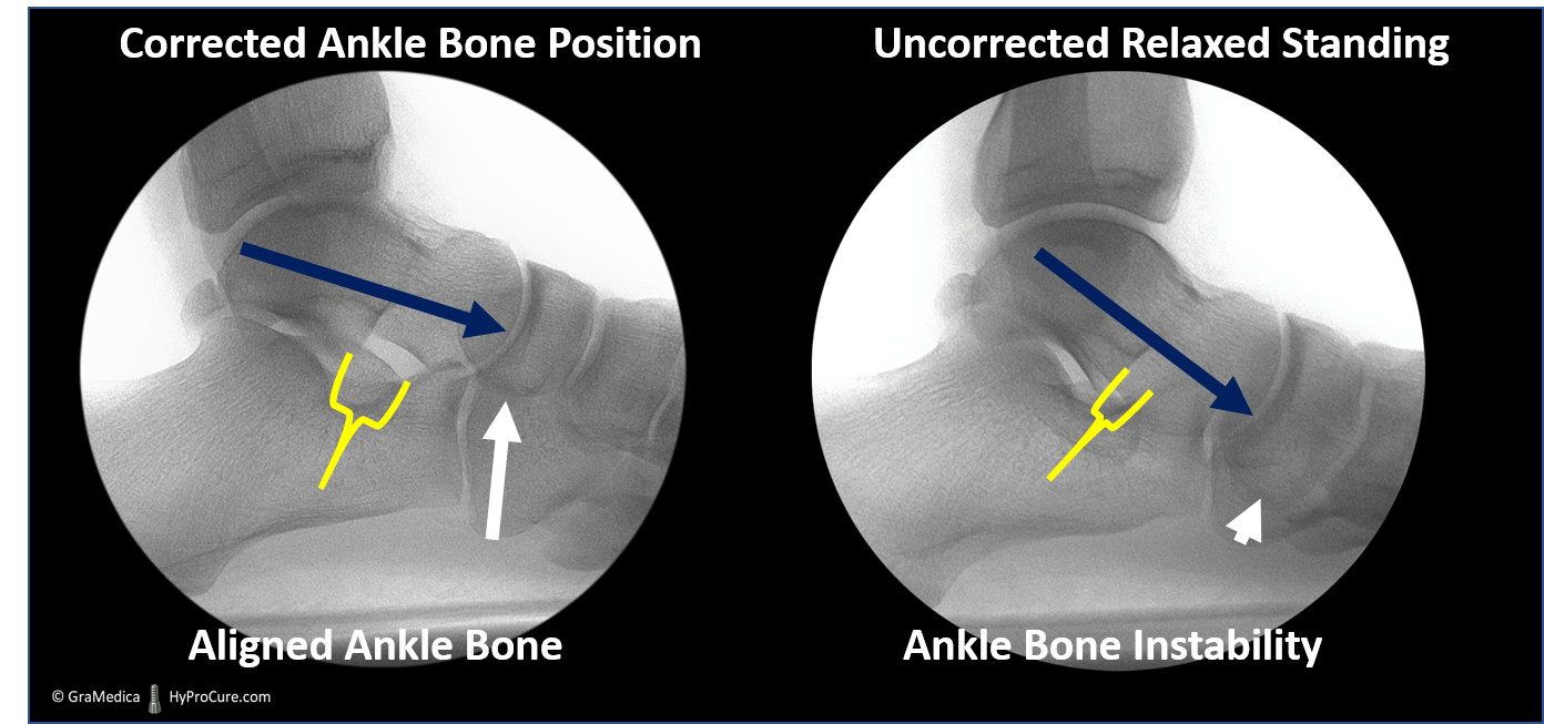 Side foot standing x-ray - corrected ankle bone position - aligned ankle bone compared with uncorrected ankle bone position - ankle bone instability