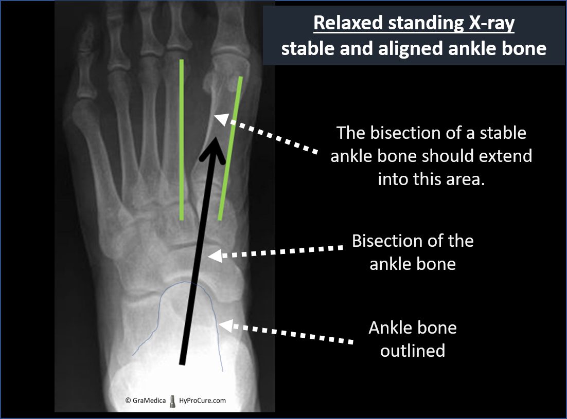 Top-bottom view relaxed standing x-ray - stable and aligned ankle bone