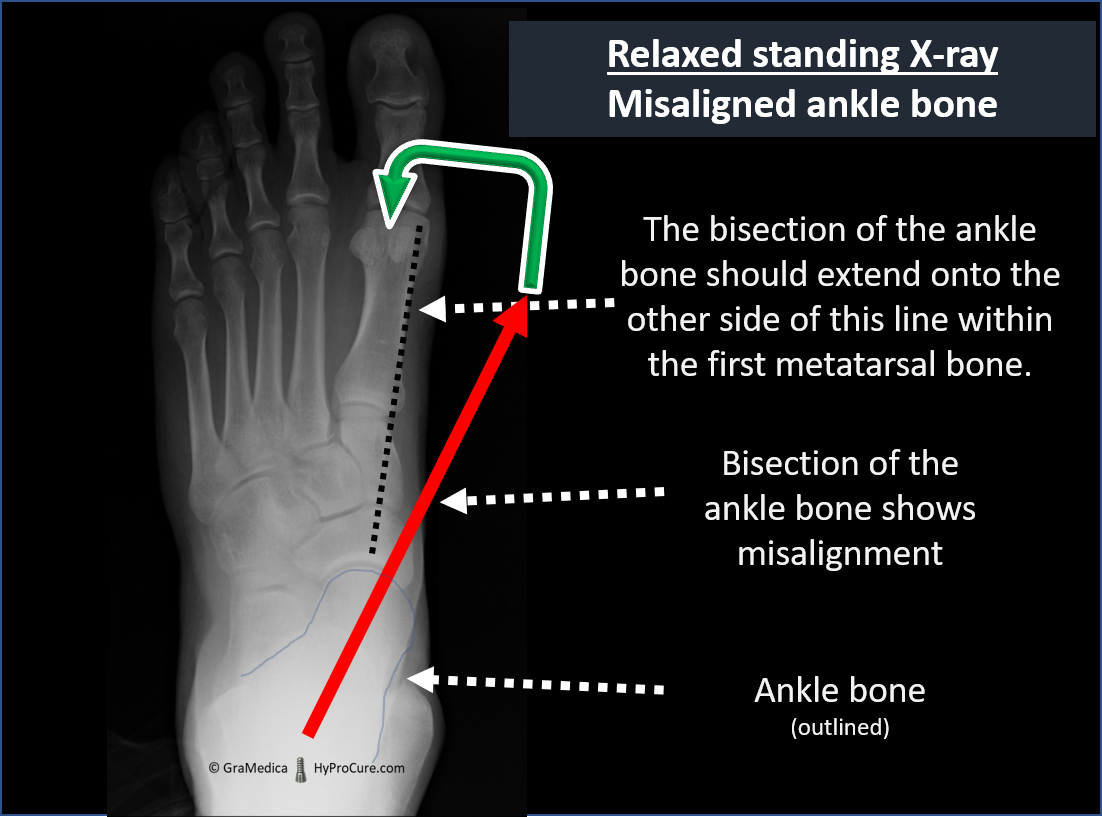 Top-bottom view relaxed standing x-ray - misaligned ankle bone