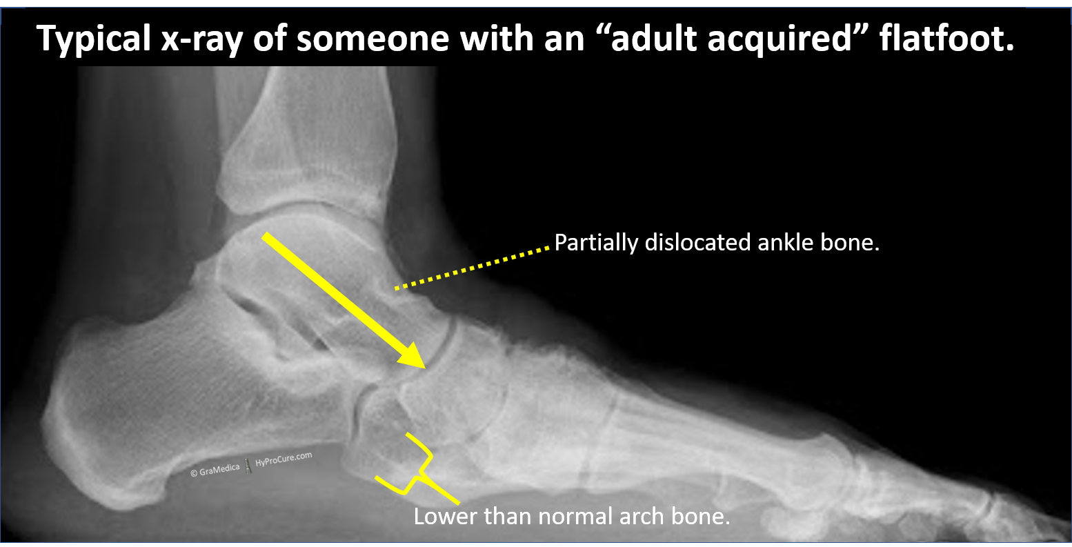 "Typical x-ray of someone with an ""adult acquired"" flatfoot"
