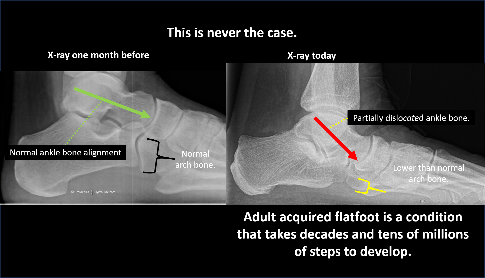 Typical x-ray of a child's foot with ankle bone instability