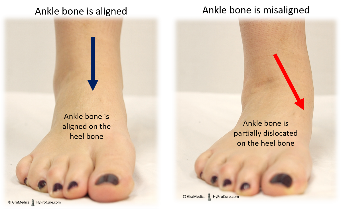 Stable ankle bone has an aligned hindfoot, a misaligned ankle bone turns inward