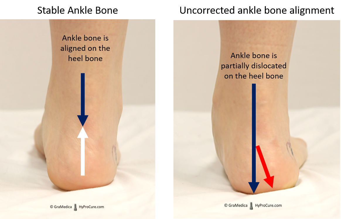 Ankle bone aligned on the heel bone compared with partially dislocated ankle bone