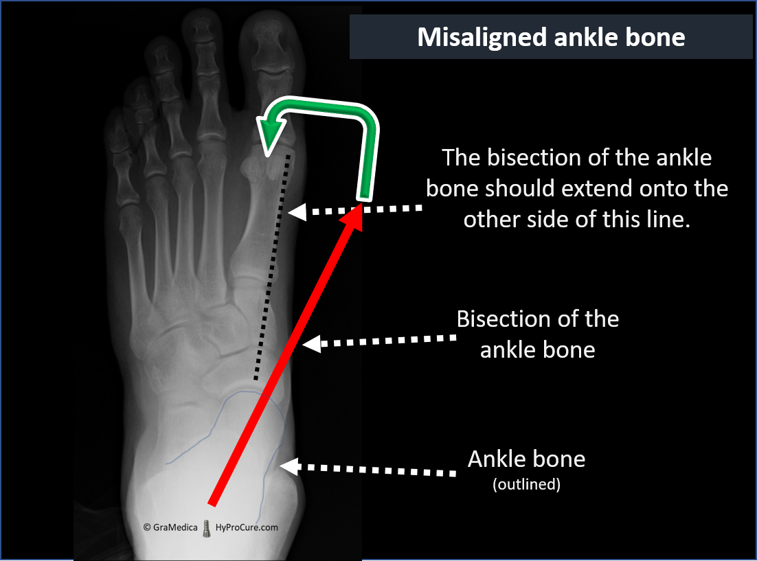Top-Bottom X-ray of misaligned Ankle Bone