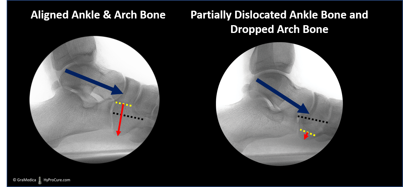 Aligned ankle and arch bone compared with Partially dislocated ankle bone and dropped arch bone