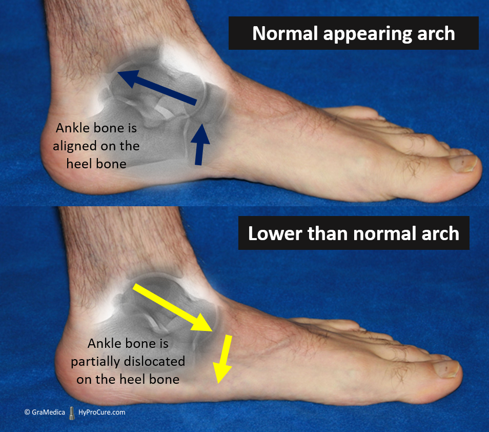Normal appearing arch and lower than normal arch