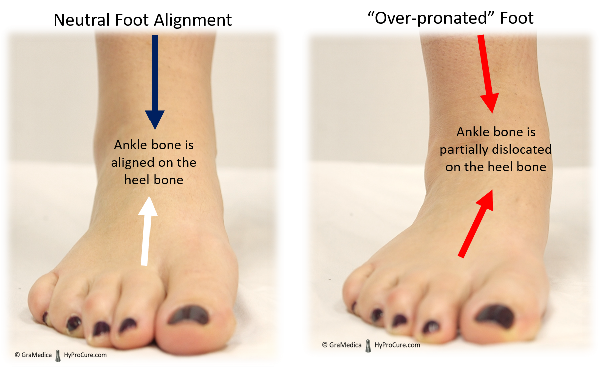 """Neutral Foot Alignment compared with """"Over-pronated"""" foot"""