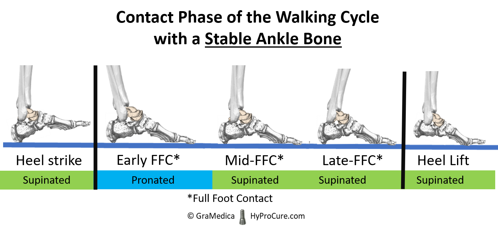 Contact phase of the walking cycle with Stable Ankle Bone