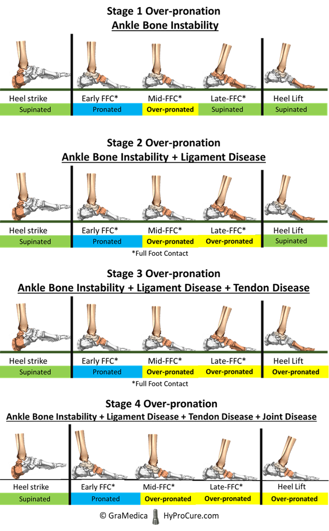 The ankle bone is pronating causing the joints of the foot to be in a weakened rather than a strengthened state
