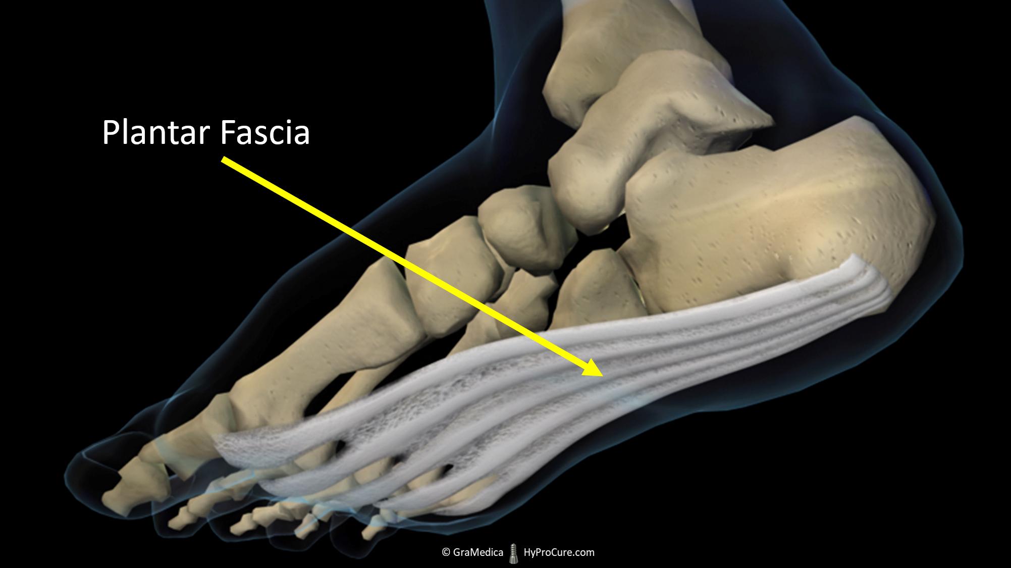 foot with visible plantar fascia