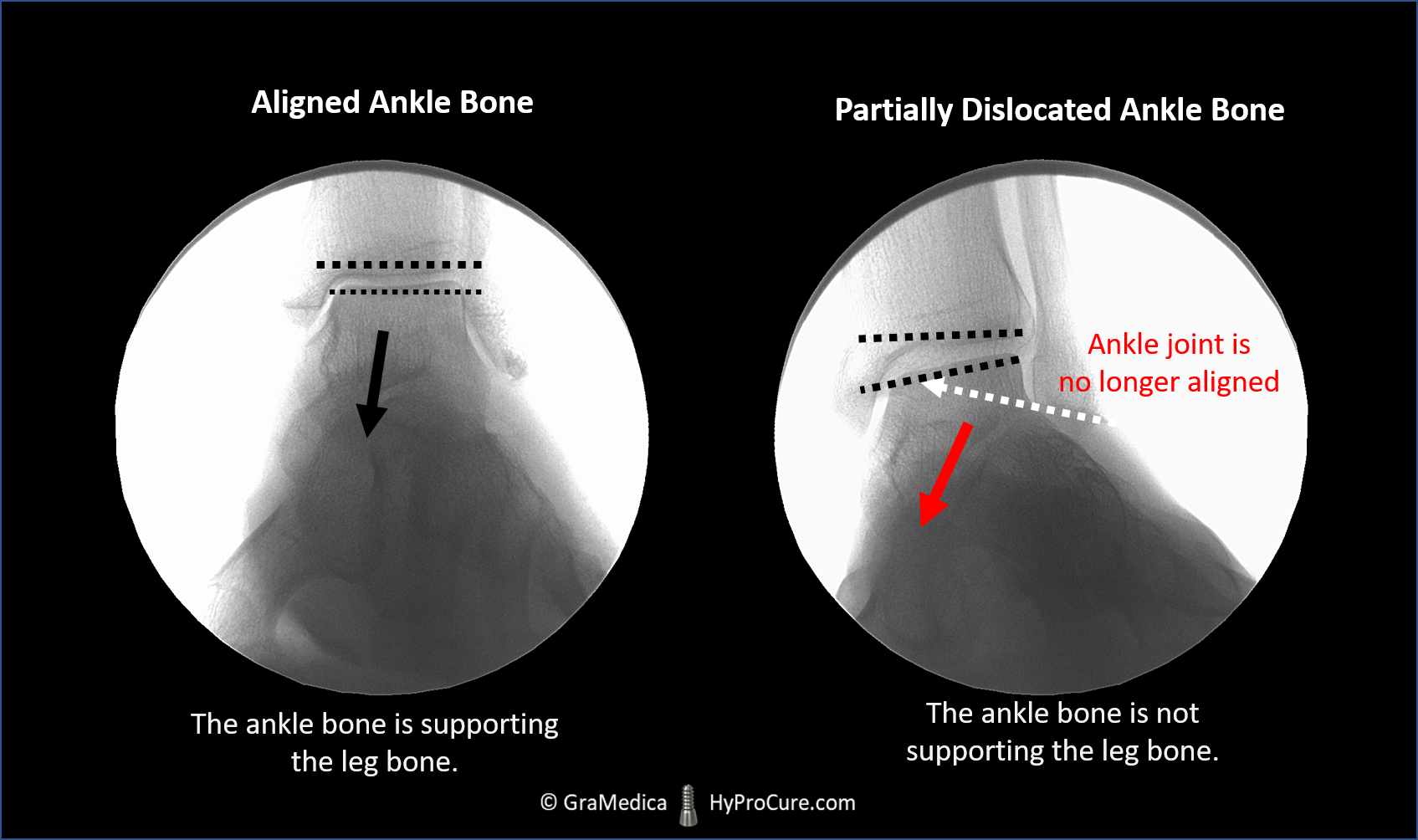 Ankle Joint X-ray showing aligned and partially dislocated ankle bone