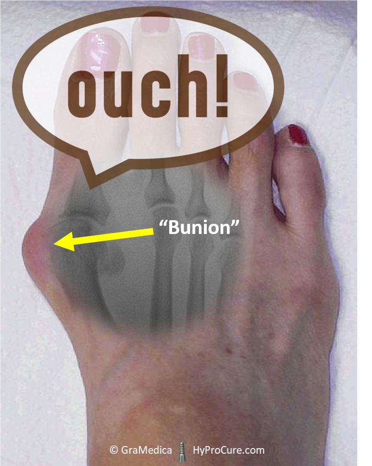 Foot Pain and Discomfort Caused By Bunions