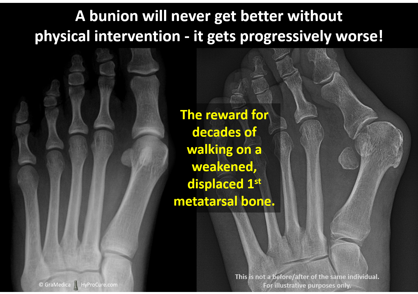 Foot x-ray showing bunion progression