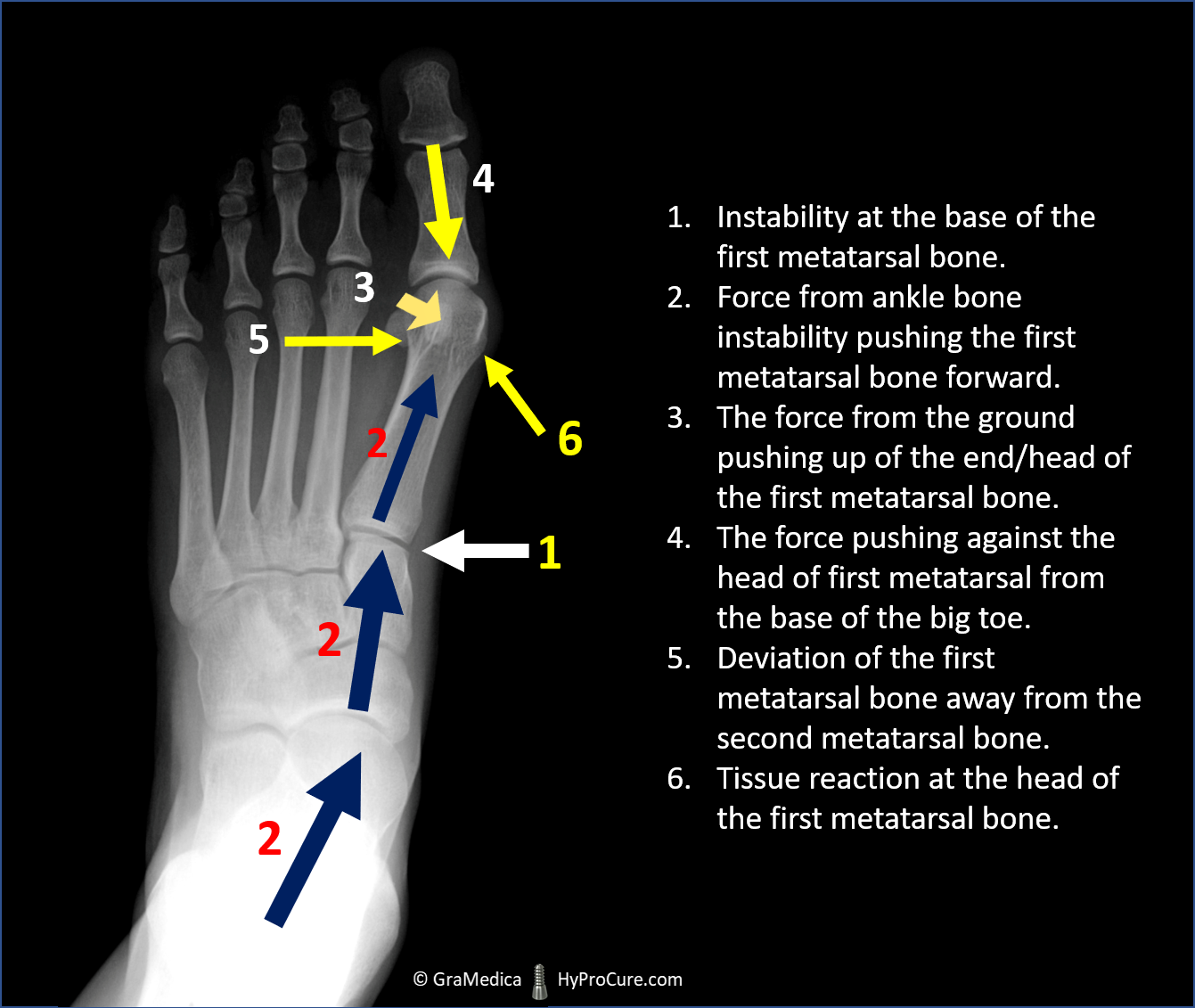 foot x-ray showing cause of bunions